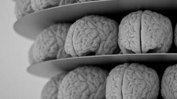 Estudios con cerebros